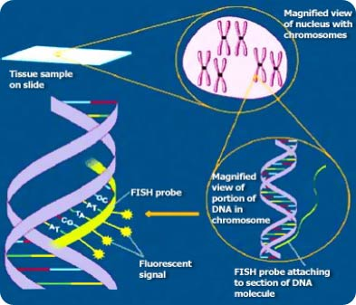 Insitu Hybridisation Treatment in India
