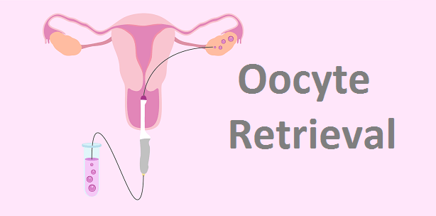 Oocyte-Retrieval.png