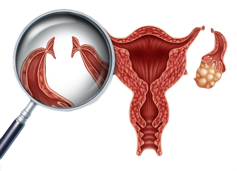 tubal-ligation-reversal-surgery.png